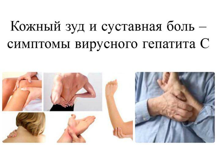 Симптомы ВГС
