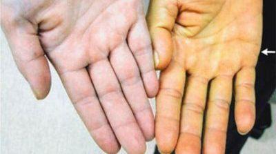 Пожелтение кожи при гепатите