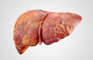 Последствия гепатитов