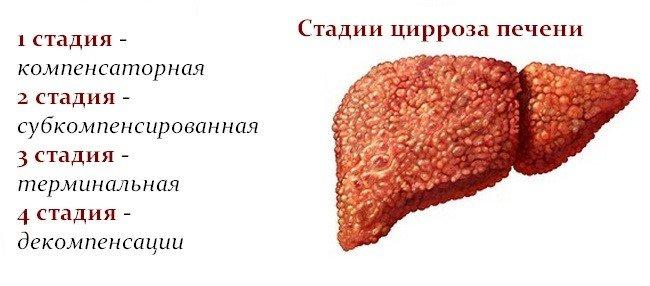 Классификация цирроза печени