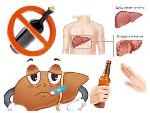 Меры профилактики гепатита и цирроза