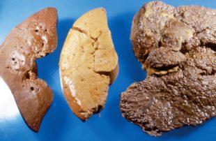 Этапы развития жирового гепатоза