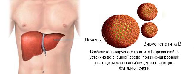 Вирусный гепатит В