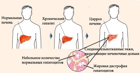 Протекание гепатита С