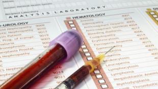 Причины повышения АСТ и АЛТ в крови