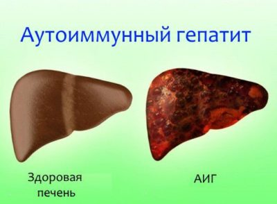 Хронический аутоиммунный гепатит