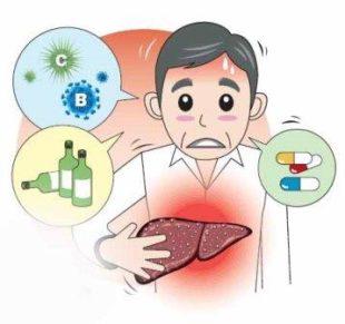 Причинные виды развития гепатита
