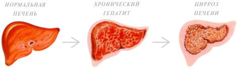 Течение гепатита Е
