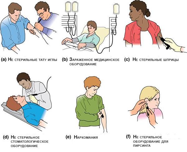 Пути заражения гепатитом B