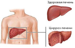 Возможный исход при вирусном гепатите