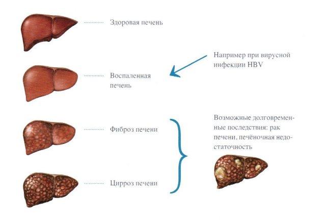 Возможные последствия гепатита