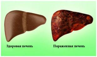 Симптоматика токсического гепатита