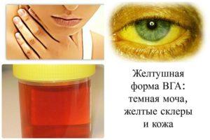 Симптоматика гепатита А