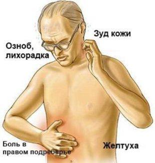 Проявление гепатита
