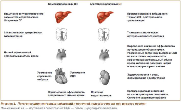 Патогенез циркуляторных нарушений и почечной недостаточности при циррозе печени