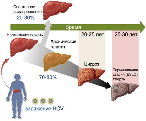 Течение гепатита С