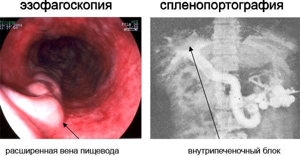 Диагностика варикозного расширения вен пищевода
