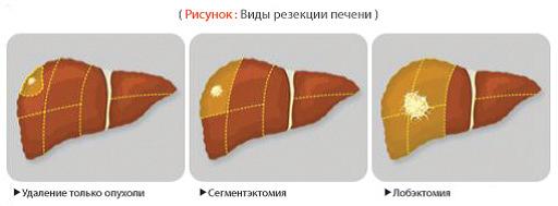 Виды резекции печени