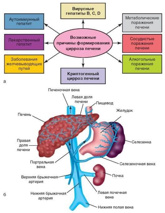 Причины формирования цирроза печени
