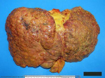 Печень на последней стадии цирроза