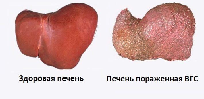 Печень, пораженная вирусом гепатита С