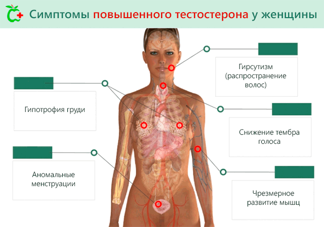 Симптомы повышения уровня тестостерона в крови у женщин