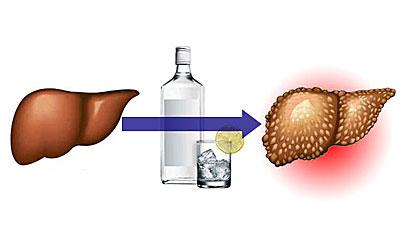 Первые признаки цирроза печени у мужчин при алкоголизме