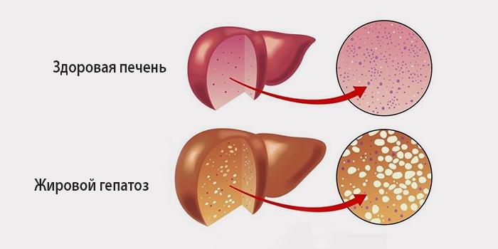 Жировой гепатоз