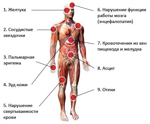 Симптомы цирроза печени