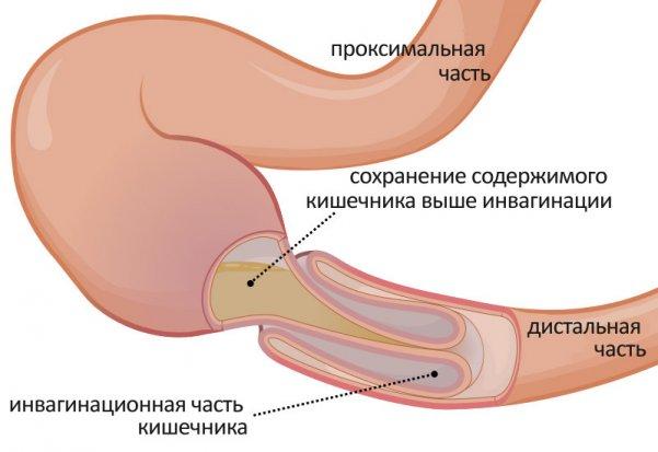 Непроходимость кишечника как осложнение асцита