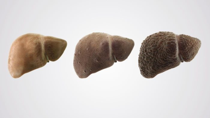 Процессы в печени при циррозе