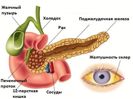 Симптомы механической желтухи при онкозаболевании