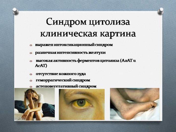 Клиническая картина при синдроме цитолиза