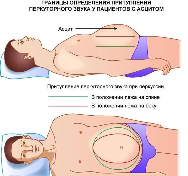 Диагностика асцита