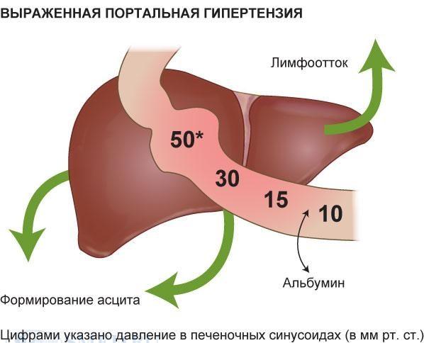 Схема формирования портальной гипертензии