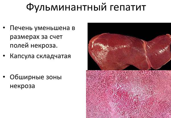 Печень при фульминантном гепатите