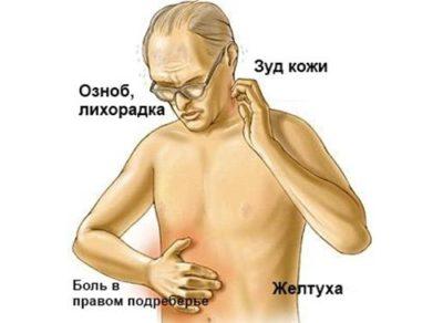 Осложнения гепатита А