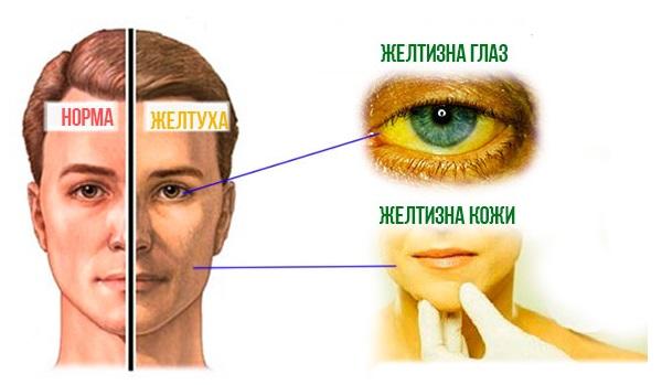 Проявления желтухи при гепатите А