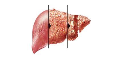 Печень при хроническом гепатите С