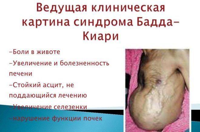 Сиптомы синдрома Бадда-Киари