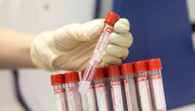 Анализ крови на выявление онкомаркеров