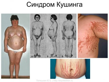 Синдром Кушинга при раке печени
