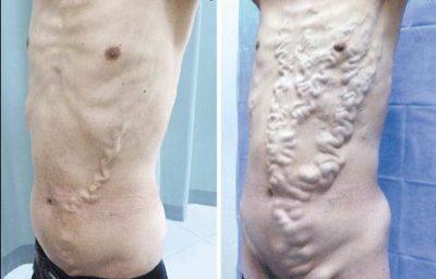 Венозное расширение вен при синдроме Бадда-Киари