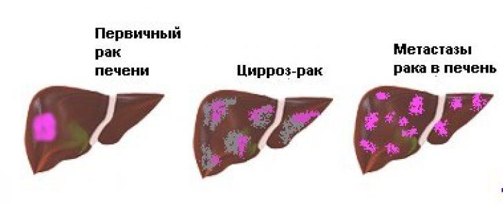 Особенности цирроза и рака печени