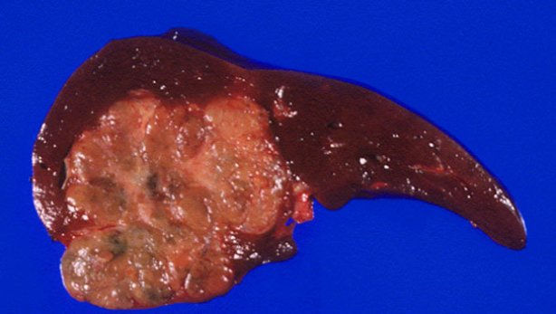 Гепатокарцинома