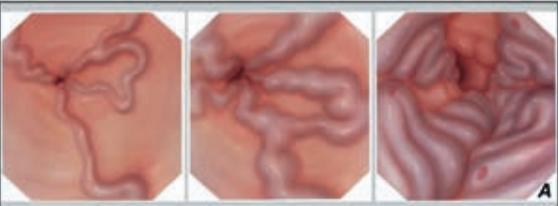 Степени варикозного расширения вен пищевода