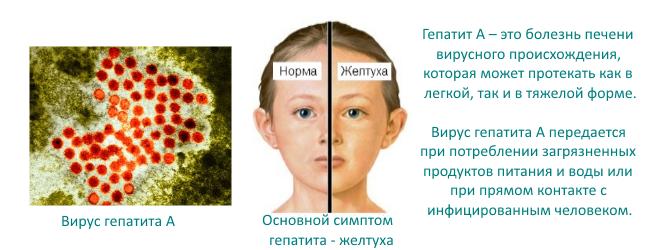 Желтуха при гепатите А у детей