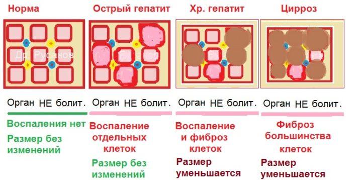 Печень при разных стадиях гепатита