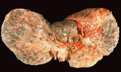 Печень больного гепатитом С