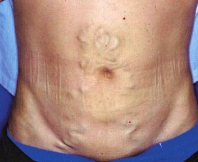 Симптом портальной гипертензии
